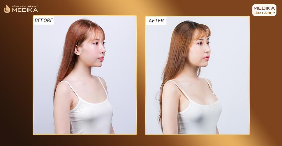 Phẫu thuật nâng ngực cần lưu ý những điều gì bởi Nangngucxe.vn?