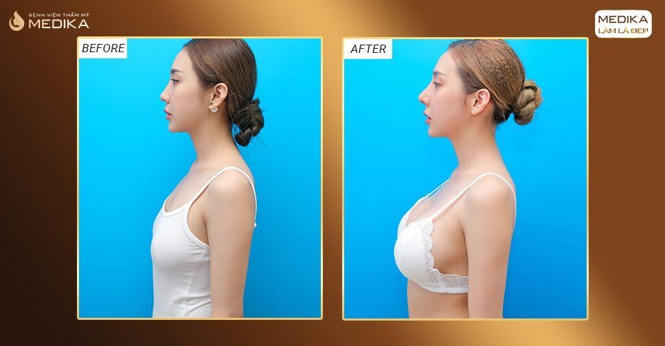 Phẫu thuật nâng ngực đẹp nên làm ở đâu bởi Nangngucxe.vn?