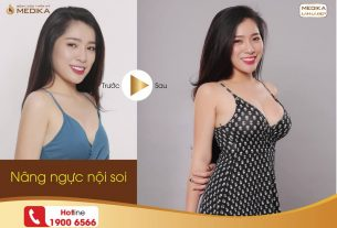 Nâng ngực đẹp mang đến hạnh phúc cho nhiều chị em từ Nangngucxe.vn