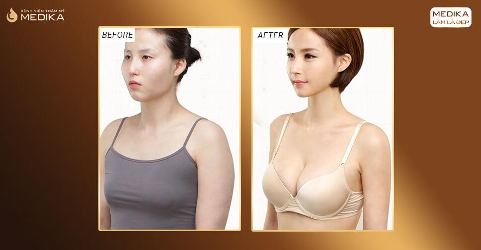 Phẫu thuật nâng ngực đừng ham giá quá rẻ bởi Nangngucxe.vn