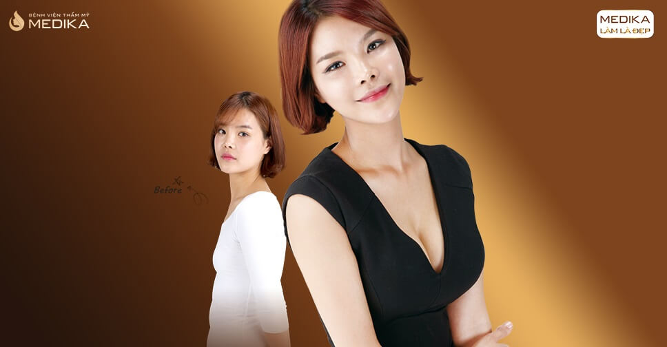 Túi Motiva dần thay thế các túi ngực khác trên thị trường bởi Nangngucxe.vn