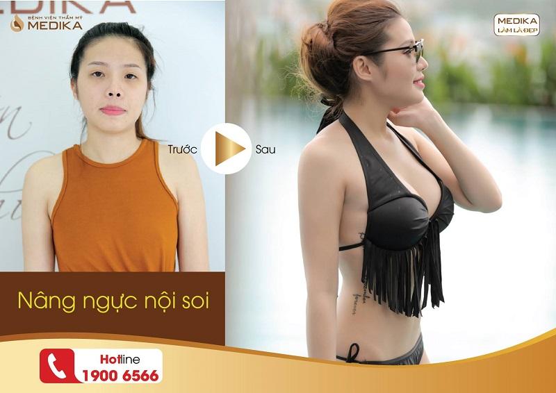 Nâng ngực đẹp phụ nữ nào không thích ở Nangngucxe.vn