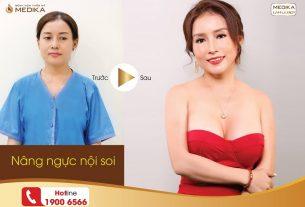 Nâng ngực đẹp phụ nữ nào không thích tại Nangngucxe.vn