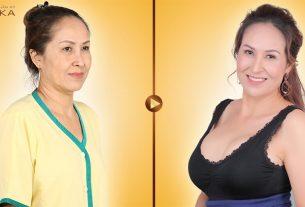 Phẫu thuật nâng ngực an toàn được chị em quan tâm nhiều tại Nangngucxe.vn