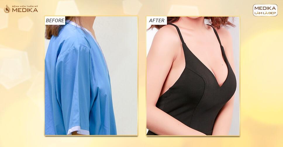 Phẫu thuật nâng ngực đẹp cùng Bệnh viện thẩm mỹ MEDIKA bởi Nangngucxe.vn