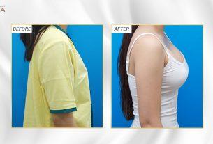 Phẫu thuật nâng ngực đẹp cùng Bệnh viện thẩm mỹ MEDIKA từ Nangngucxe.vn