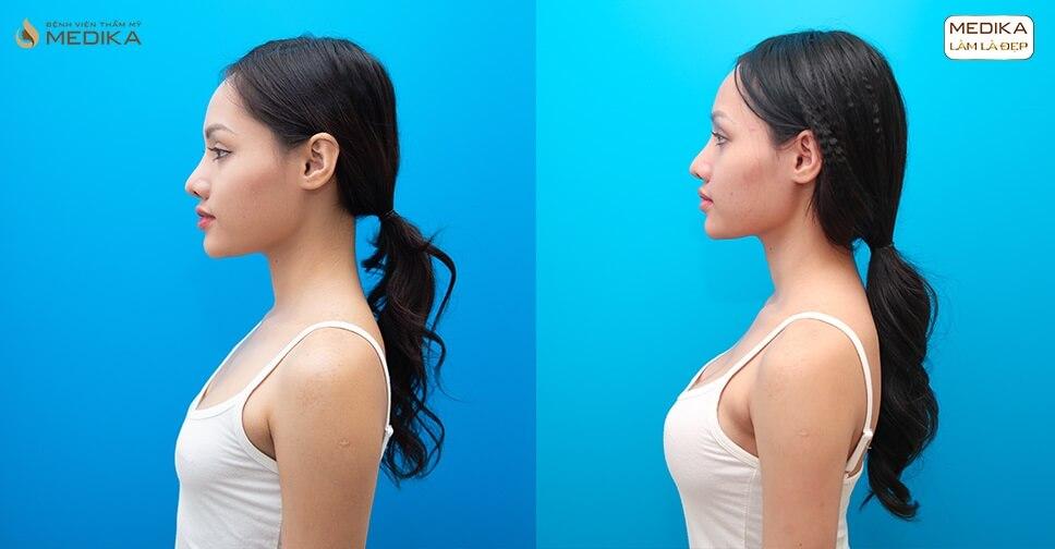 Phẫu thuật nâng ngực đẹp hãy lựa chọn MEDIKA bởi Nangngucxe.vn