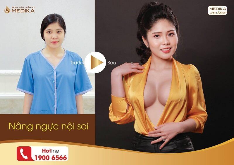 Phương pháp hiện đại giúp nâng ngực đẹp ở Nangngucxe.vn