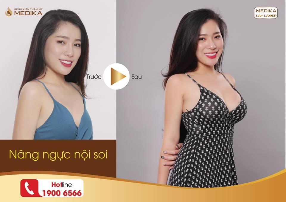 Phương pháp hiện đại giúp nâng ngực đẹp tại Nangngucxe.vn