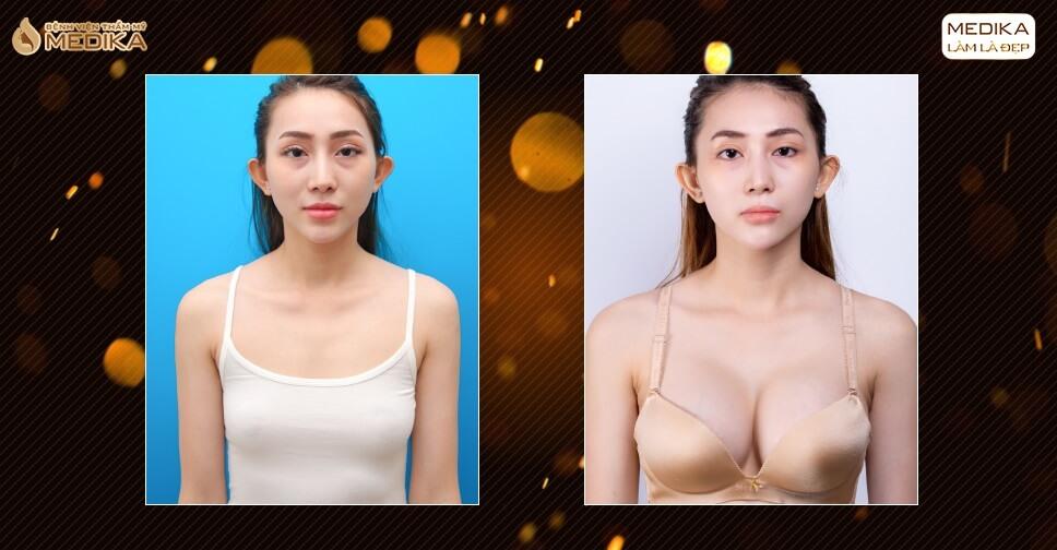 Phẫu thuật nâng ngực đẹp lựa chọn ngay và luôn phương pháp này ở Nangngucxe.vn