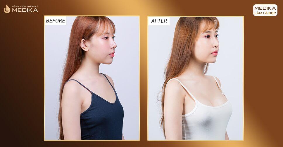 Bệnh tim bẩm sinh có nâng ngực được hay không tại Nangngucxe.vn?