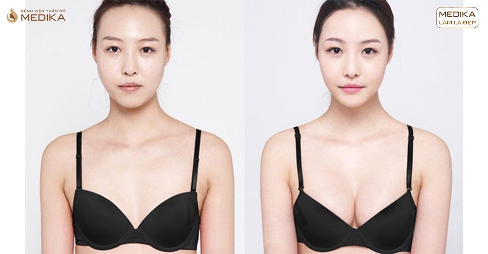 Lựa chọn nâng ngực hoàn hảo với dòng túi xốp Polytech tại Nangngucxe.vn
